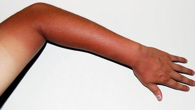 Tìm hiểu cách làm trắng da tay, da chân khi bị cháy nắng